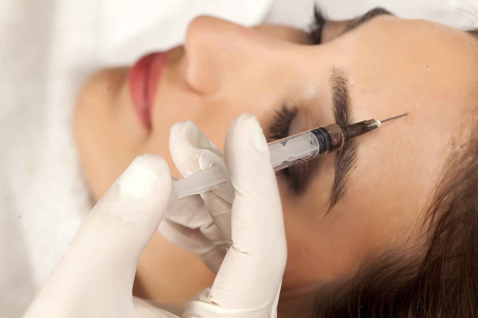 Tout savoir sur l'injection de Botox